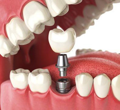 Dental Implants - Cassiobury Dental Practice