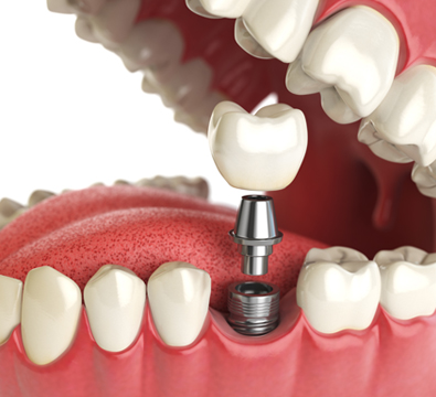 Single Tooth Dental Implants - Cassiobury Dental Practice