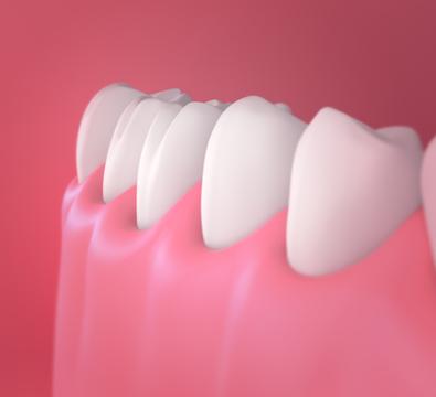 Prosthodontics - Cassiobury Dental Practice
