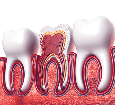 Root Canal Treatment - Cassiobury Dental Practice