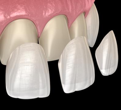 Veneers - Cassiobury Dental Practice