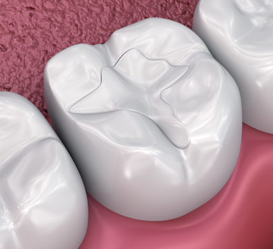 White Fillings - Cassiobury Dental Practice